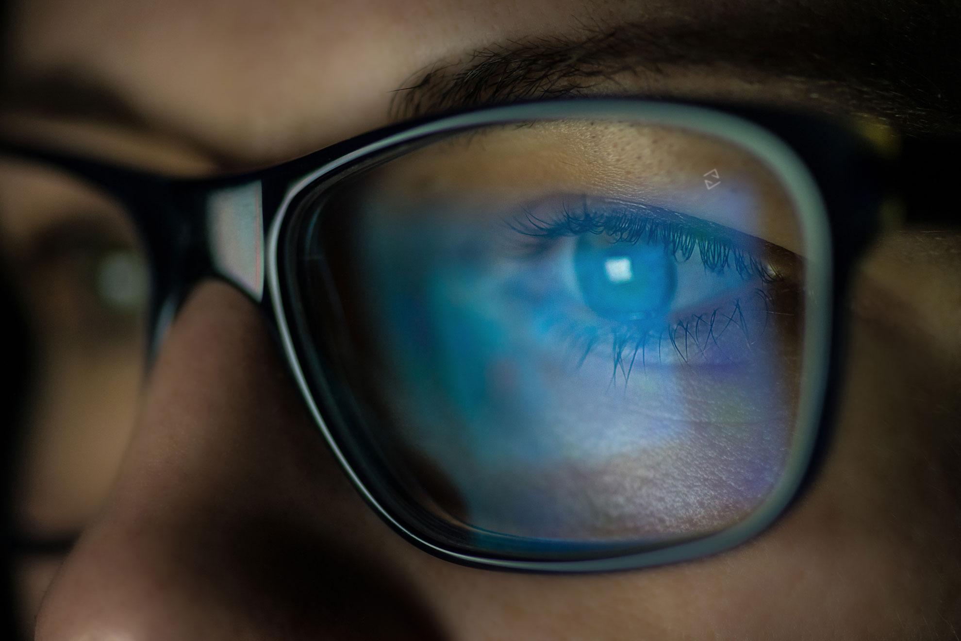 глаза за очками картинки точки, появляющиеся щеках